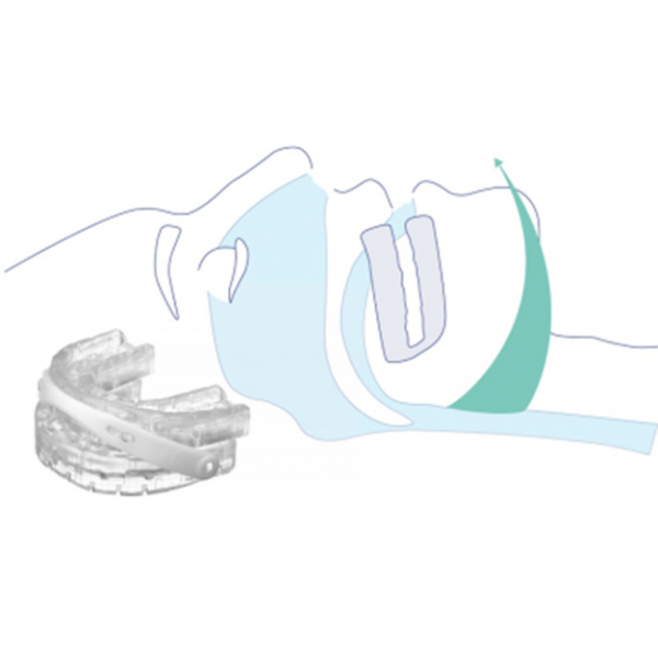 Snoring Somnofit Anti Snoring Guard How it works